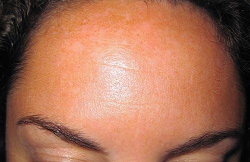 Voorhoofd, voorhoofdrimpel, voorhoofd na behandeling botox