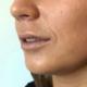lippen botox, lippen opspuiten, lippen behandeling, vollere lippen, lippen cosmetisch, lippen plastische chirurgie