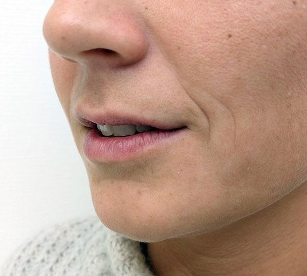 lippen, botox, lippen opspuiten, lippen behandeling, vollere lippen, lippen cosmetisch, lippen plastische chirurgie