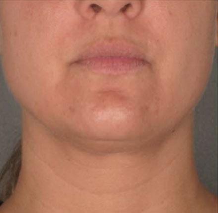 onderkin behandeling, onderkin dermatoloog, onderkin weg, belkyra behandeling, belkyra behandeling, belkyra onderkin behandeling