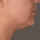 onderkin behandeling, onderkin dermatoloog, onderkin weg, belkyra behandeling, belkyra onderkin behandeling